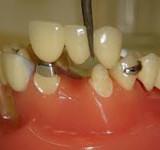 Livena nadogradnja zuba