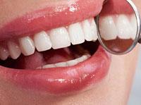 Peskarenje zuba