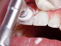 Poliranje zuba
